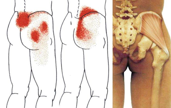 javasoljon jó kenőcsöt az osteochondrozistól a lábfej lábfejének kezelése