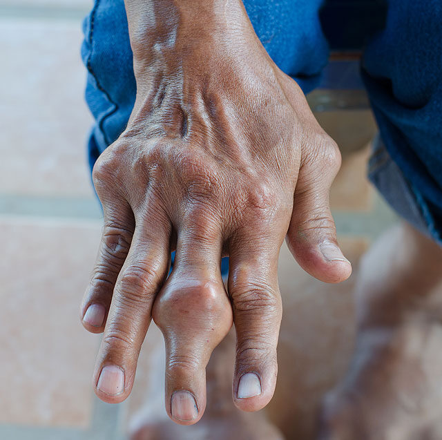 az ujjak ízületeinek akut gyulladása)