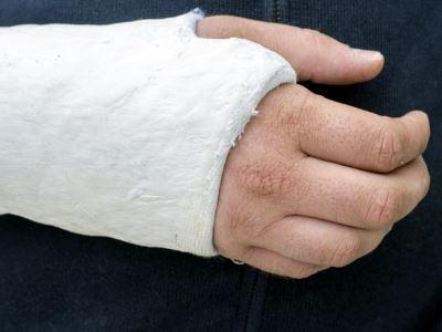 A csonttörés meddig fáj?