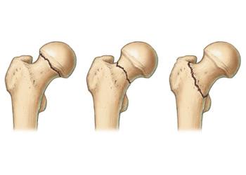 csípő diszlokáció fájdalma)