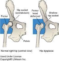 csípő dysplasia kezelése 10 hónap alatt)