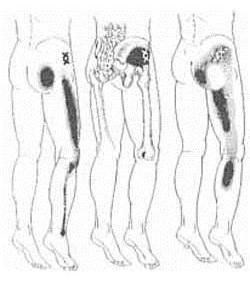 csípő fájdalom láb esés