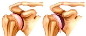 csípőízületek betegségei