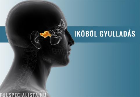 ízületi betegség sinusitis az acromialis clavicularis ízület