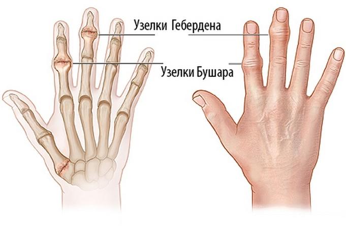 a gerinc ízületeinek deformáló artrózisa