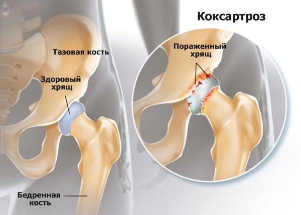 a csípőízület deformáló artrózisa. kezelés