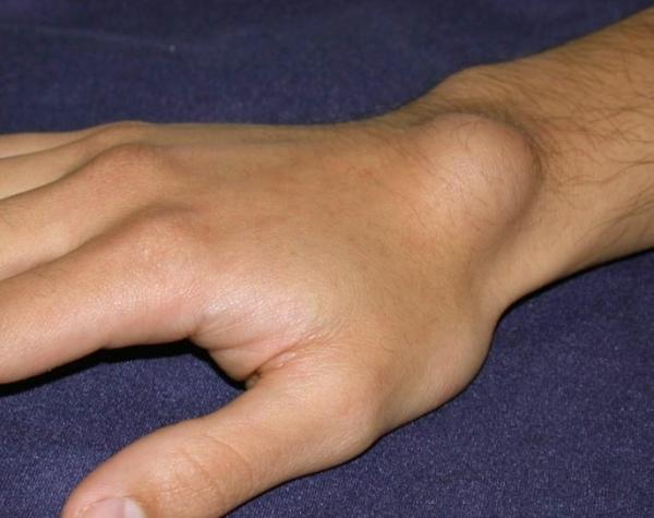 csuklóízületi tünetek és kezelés)