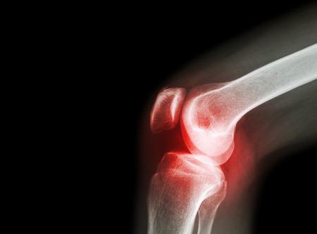 sarok-artrózis hatékony kezelése