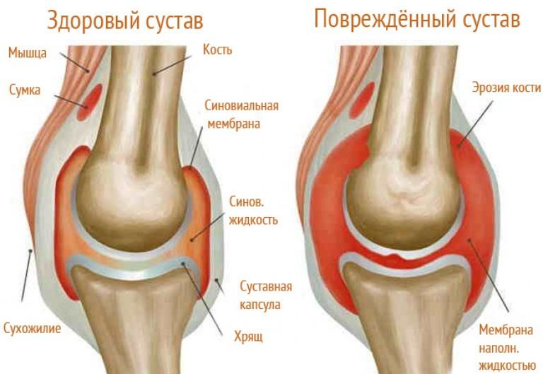 a boka ínszalagok károsodásának kezelése