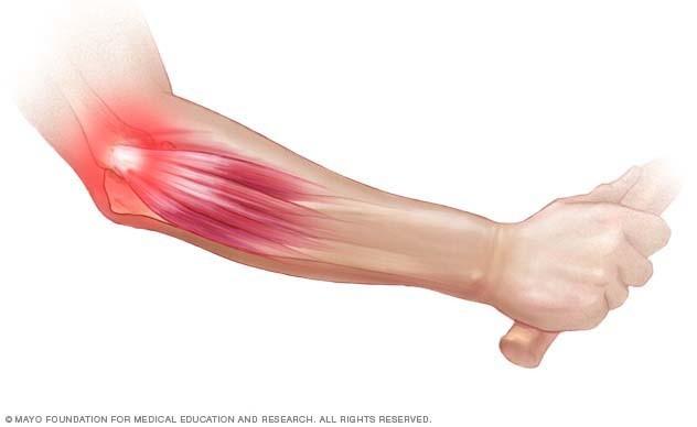 artrózis artritisz bursitis kezelés