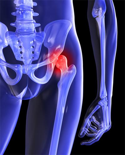 elzáródás a csípőízület fájdalmában)