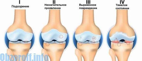 artrózis tüskék kezelése láb ízületi betegsége