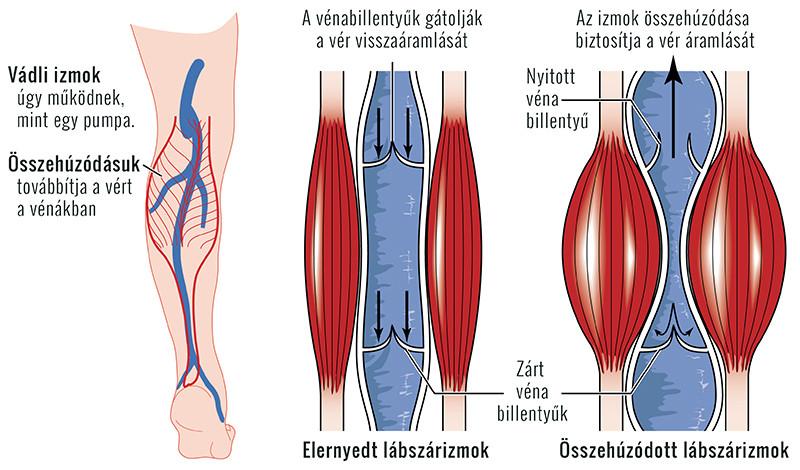térd elzáródása artrózisban)