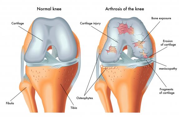 a legújabb az artrózis kezelésében)