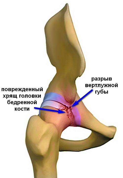 elhúzódó fájdalom a csípőízületben)