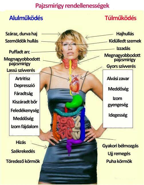 Befagyott váll 3 oka, 3 tünete, 9 kezelési módja [teljes útmutató] - 27 Sellő