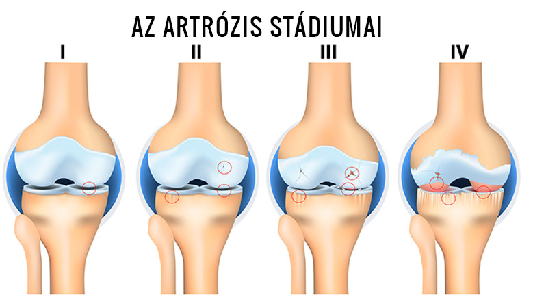 eszközök artrózis és ízületi gyulladás kezelésére)