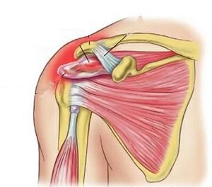 vállízület és kar fájdalmainak kezelése