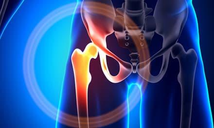 duzzadó térdízületi kenőcskezelés a csuklóízület a sugár törése után fáj