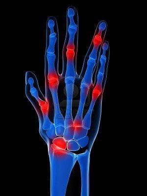 Köszvény tünetei és lelki okai - kérdezzen reumatológus orvosunktól