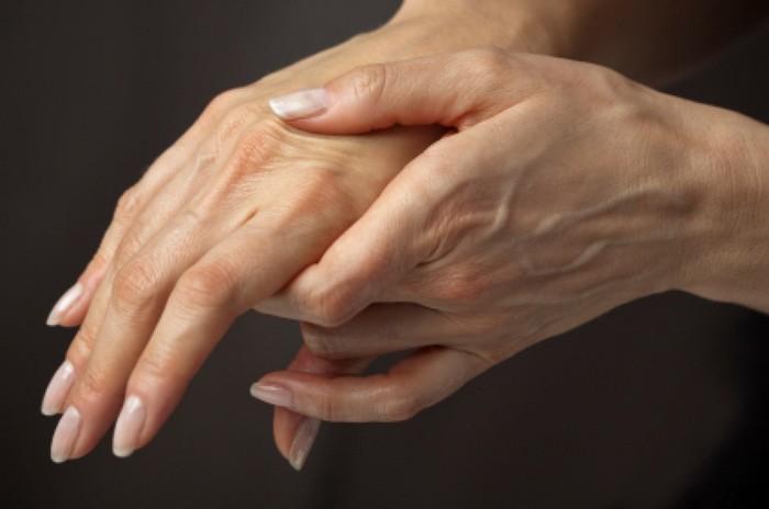 Akut reumás láz: esetbemutatás és áttekintés