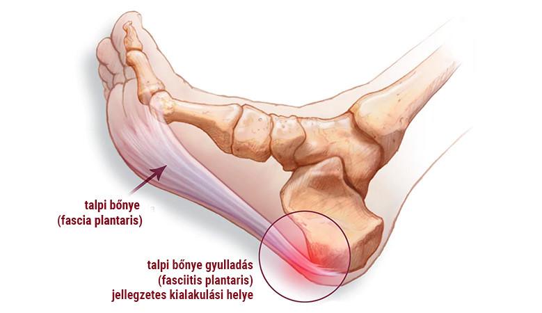 a lábak ízületeinek ínszalagok és inak gyulladása