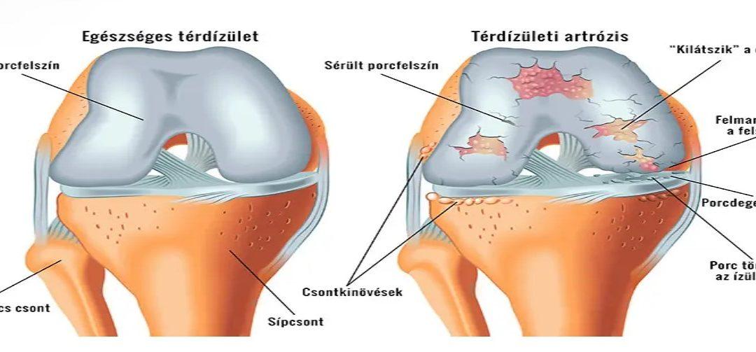 hogyan diagnosztizálják a térd artrózisát)