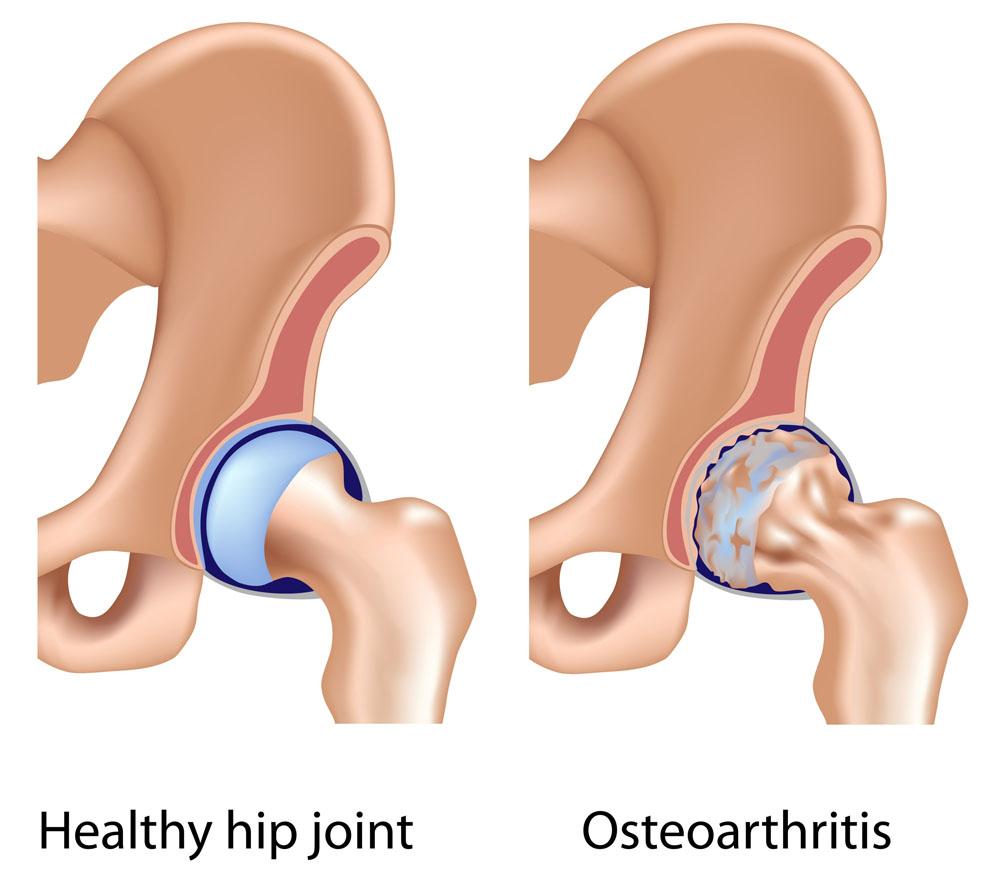 csípőízület éles fájdalmakat okoz)