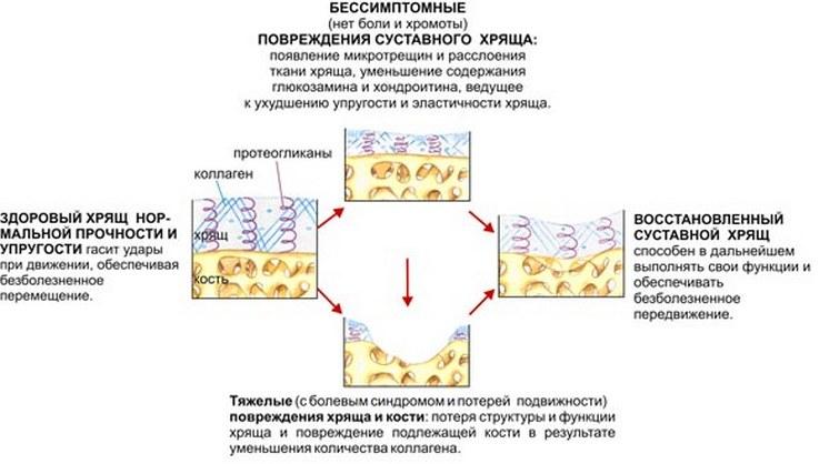 fermatron készítmény térdízületekre