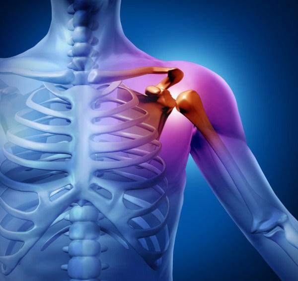 fáj a vállízület, hogyan lehet enyhíteni a fájdalmat)