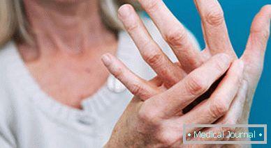 fájó ujjak az ízületekben kondroitin és glükózamin, amely jobb