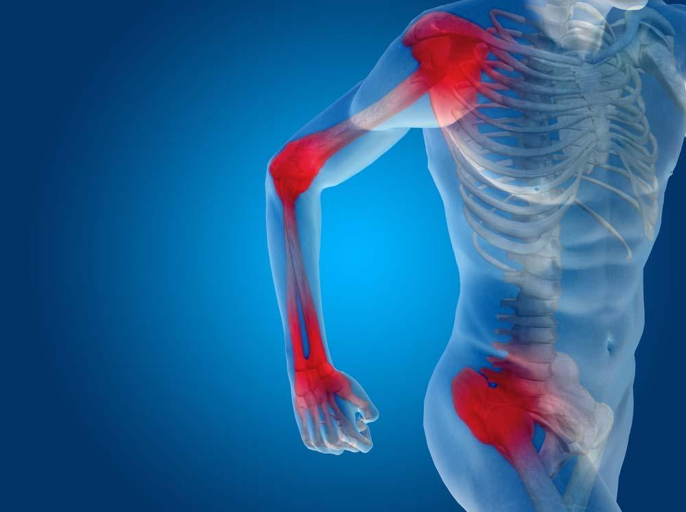 a boka másodlagos ízületi gyulladása ízületi fájdalmak a karon