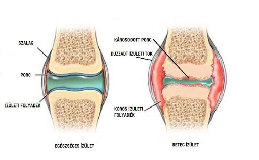 súlyos fájdalom az izmok ízületeinek csontainál