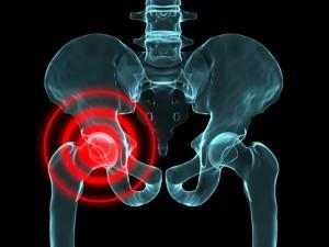 hip trochanteritis, aki gyógyul