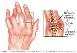 hogyan kezelik a szürke ízületi gyulladást gonarthrosis a térdízület kenőcsének kezelése 2 fokkal
