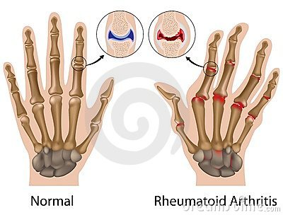 ujjak kezek artritisz