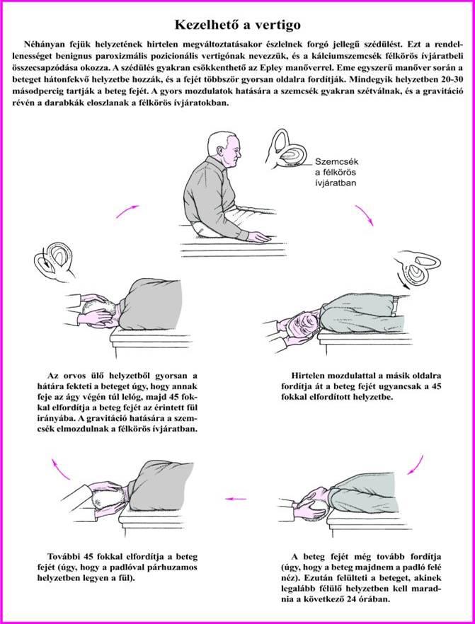 hogyan lehet kezelni a spondilózist és a gerinc artrózisát bal vállízület hogyan kell kezelni