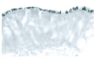 Enterobiosis honnan származik. Milyen veszélyt jelent a pinworms