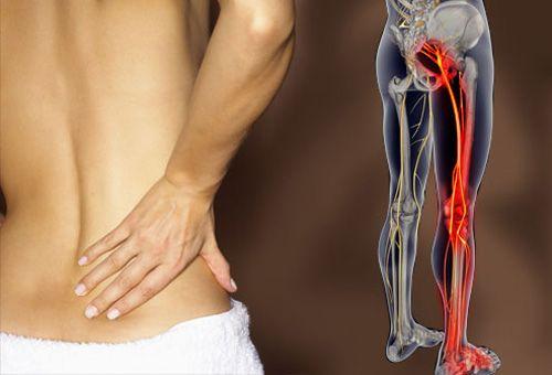 isiás fájdalom dimexid az ízületek kezelésében
