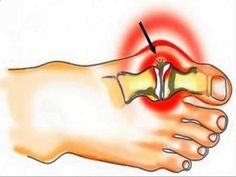 kenőcs gél csontritkulás nyak