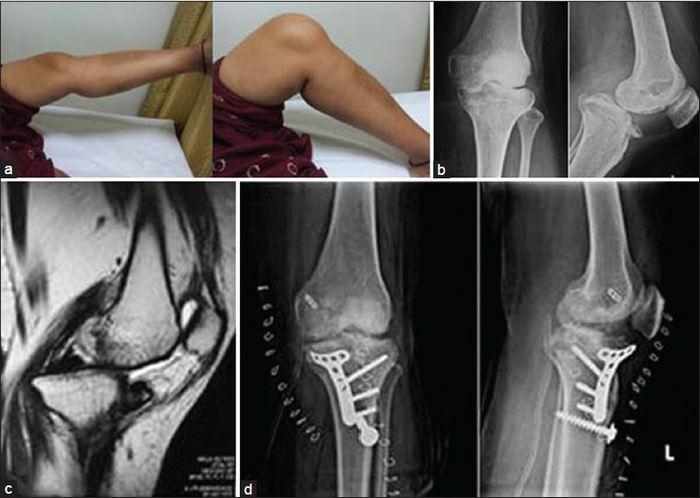 keresztirányú keresztirányú artrózis kezelés