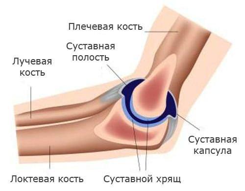 Dr. Diag - Bursitis olecrani