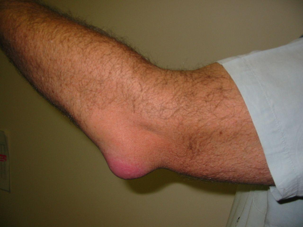 könyökgyulladás artrózis kezelése a chrysostomban