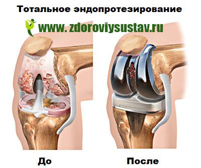 kondroxid térdfájdalom