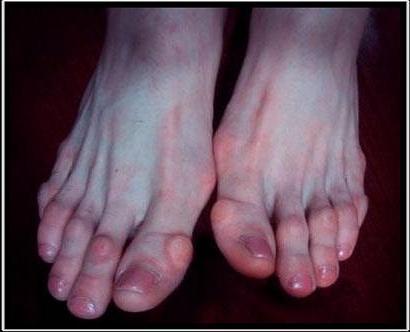 lazarev ízületi fájdalom a lábak ízületeinek ínszalagok és inak gyulladása