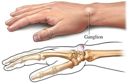 1. szakasz a térd deformáló artrózisa