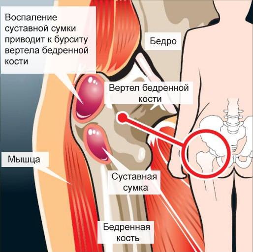 mi a vállízület 2. fokú artrózisa