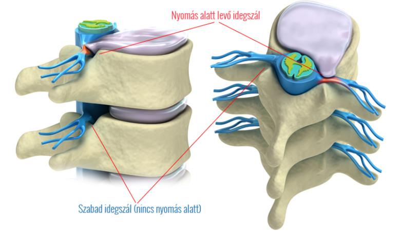 mi provokálja a fájdalmat a csípőízületben