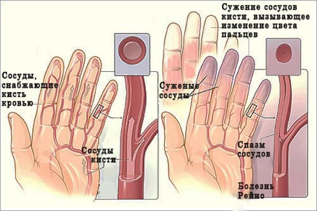 mit inni az ujjak ízületeinek fájdalmától rubax ízületi gyógyszer