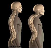 modern gyógyszerek az ágyéki csontritkulásról éjjeli csípőfájdalom okozza